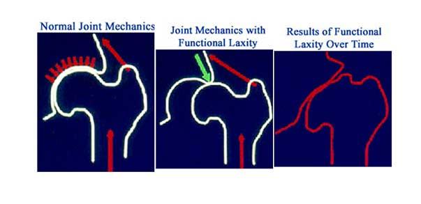 fig.1 - Lassità articolare che causa artrosi